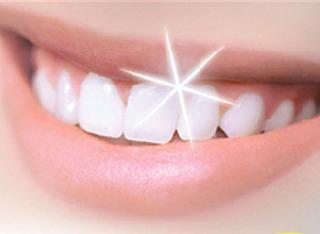 como-blanquear-dientes-L-GxbhNc